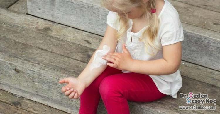 çocuklarda sinek, böcek ısırması sokması