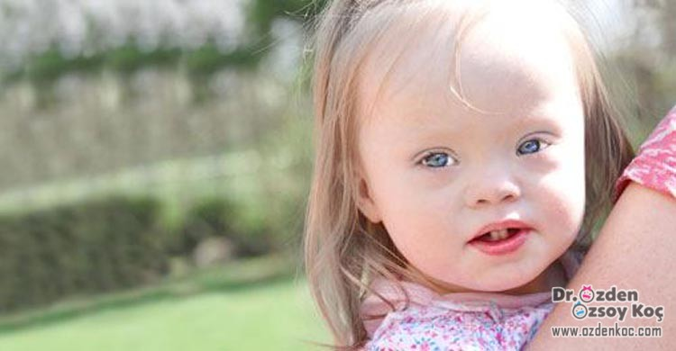 Down Sendromu | Sebepleri | Tedavisi